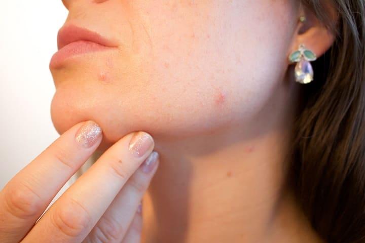 ミラブルはニキビに効果があるの?肌荒れ改善できる理由は何?ミラブルはニキビに効果があるの?そもそもニキビの原因とミラブルの関係